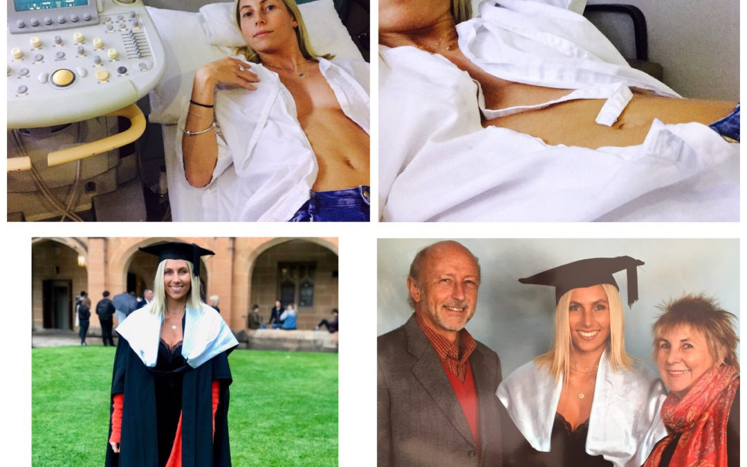 I nearly missed my graduation ceremony because I found a lump in my breast.
